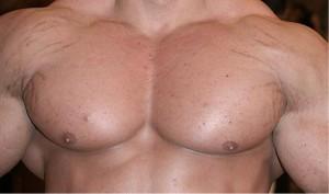 Männer die Dehnungsstreifen durch Muskelaufbau bekommen, bekommen diese oft unter den Achseln. Bildquelle: http://bodybuilding-mauritius.blogspot.de/2013/02/stretch-marks-and-bodybuilder.html