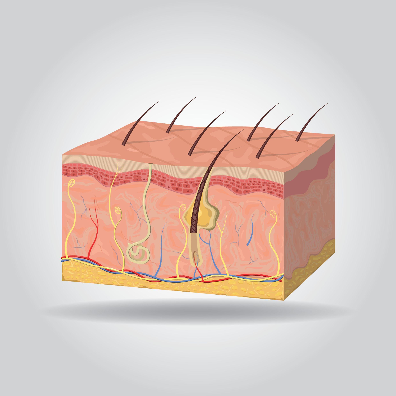 Die dunklen sich schuppenden Flecke auf der Haut zwischen der Beine
