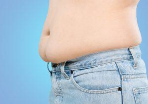 Dehnungsstreifen fallen einem oft erst nach einer Diät auf.