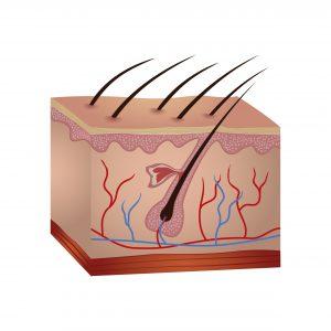 Schwangerschaftsstreifen entstehen im Bindegewebe der Haut