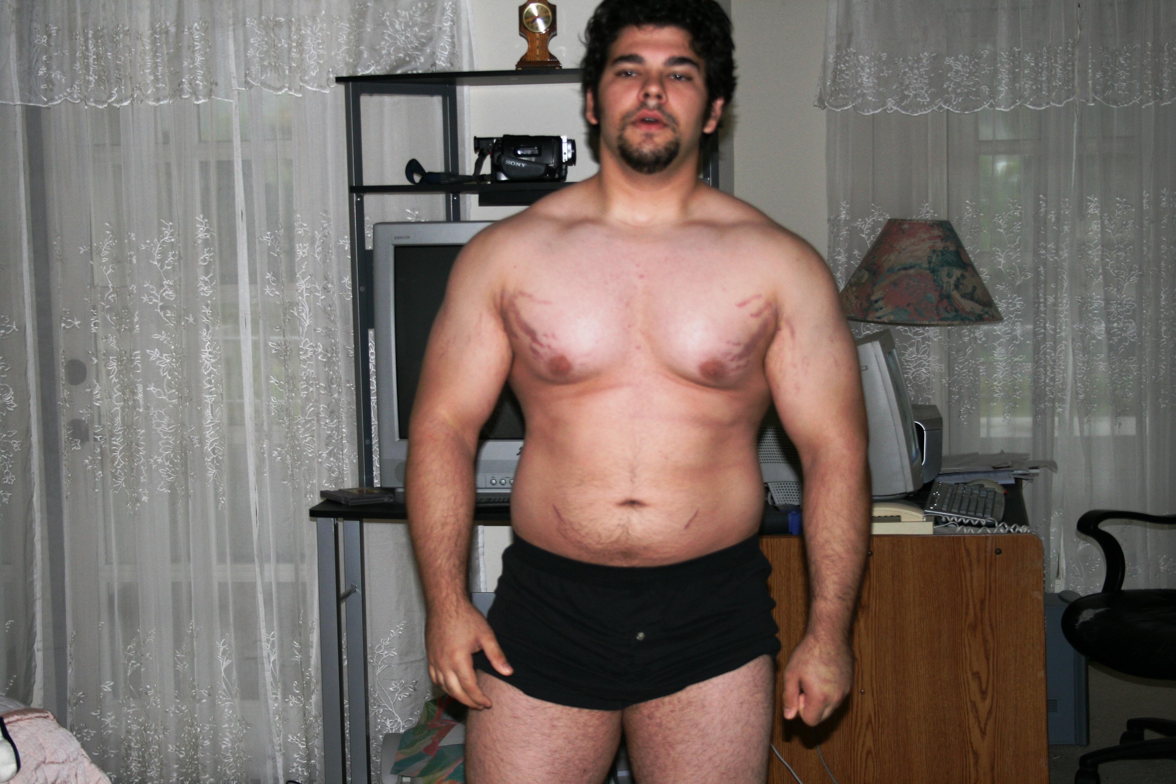 Hautrisse bodybuilding