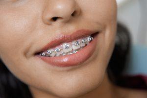 Dehnungsstreifen gehören zur Pubertät wie Zahnspangen und Pickel.